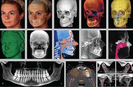 El sistema Dolphin 3D de estudio de ortodoncia nos ayuda a elegir el tratamiento más adecuado en cada caso