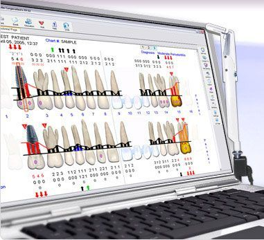 Los sistemas digitales de estudio de las encías por ordenador como el Florida Probe o el Voi-ceWorks nos resultan de gran ayuda para llevar a cabo un tratamiento de las encías adecuado y controlado