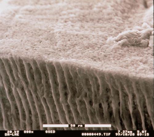 Fotografía de los túbulos de la dentina de los dientes vista al microscopio electrónico de barrido ambiental. (Estudio de Clínica Dental Padrós)
