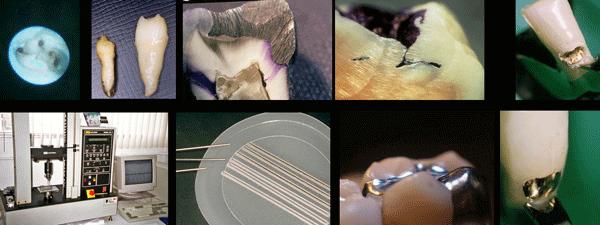 Estas son una muestra de algunas de las imágenes de diferentes estudios realizados por la clínica dental Padrós y publicados en las revistas científicas nacionales y extranjeras