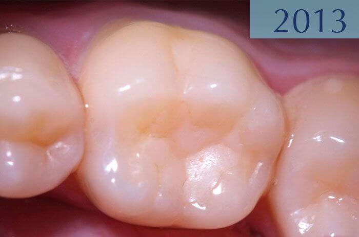 Empaste dental 16 años más tarde, realizado en el año 1997 en Clínica Dental Padrós en un tratamiento de caries dental