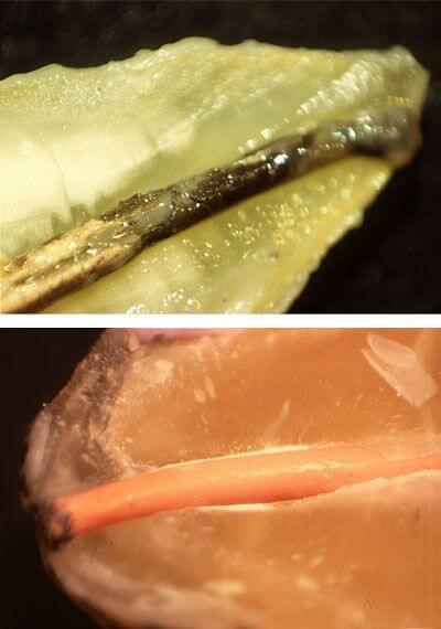 Imágenes de la investigación llevada a cabo por Clínica Dental Padrós sobre el sellado de los conductos en endodoncia