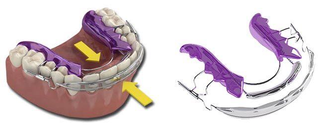 En la imagen se puede observar como trabaja el sistema de ortodoncia rápida en Barcelona Inman Aligner para alinear de manera correcta los dientes. Se utiliza un dispositivo removible que permite una máxima comodidad y practicidad.