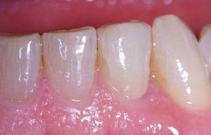 Ejemplo de un caso real tratado en la Clínica Dental Padrós después de proceder al tratamiento de implantes dentales. Como se puede observar se consigue un efecto totalmente limpio y natural.