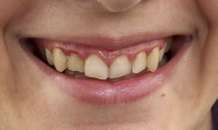 Antes del tratamiento de blanqueamiento dental