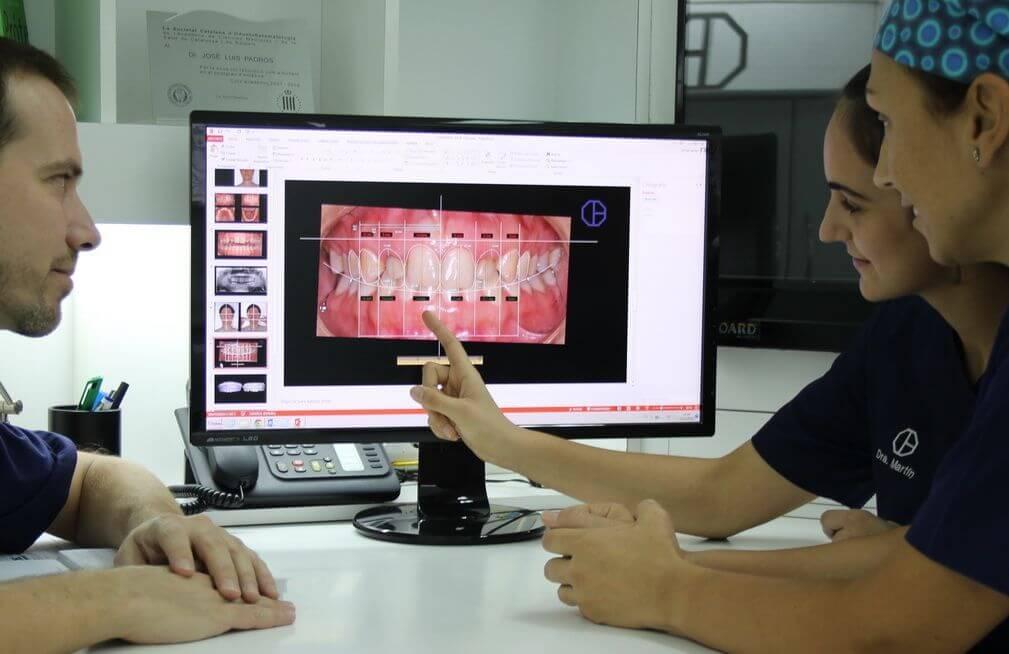 estudios estética dental, software digital smile design en Clínica Dental Padrós