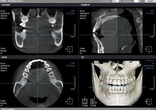 Los programas de análisis de radiología 3D como el Simplant o el RealScan nos permiten disponer de la máxima información radiográfica posible.
