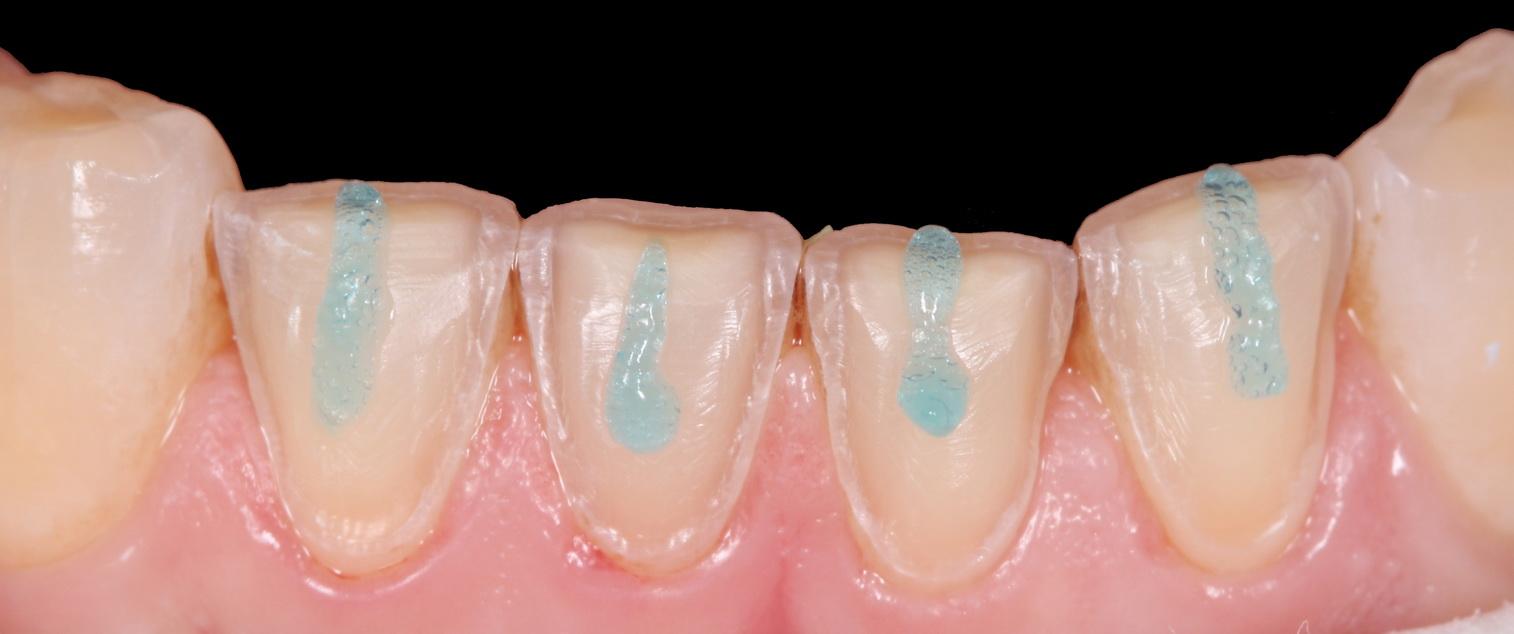 Curso de Adhesión Dental Práctica