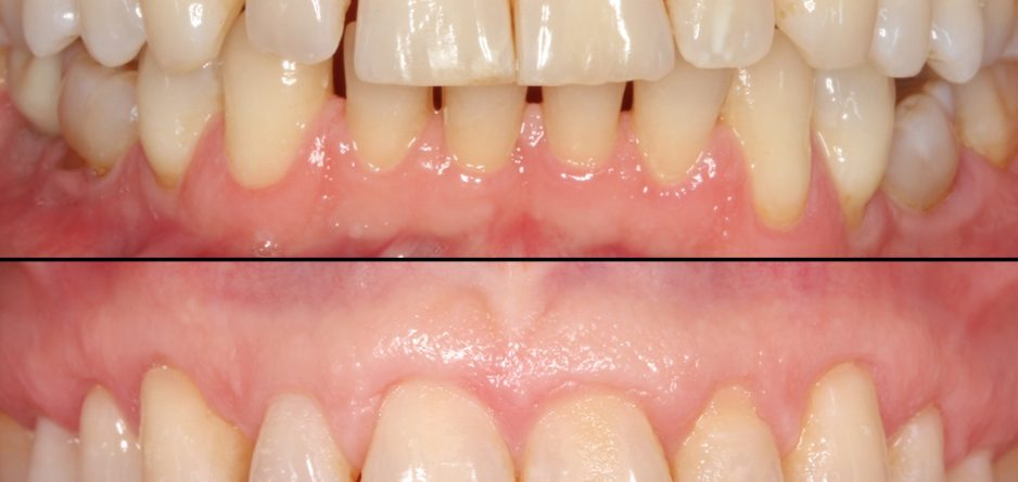 Caso dental Salva: tratamiento de encías retraídas Pinhole