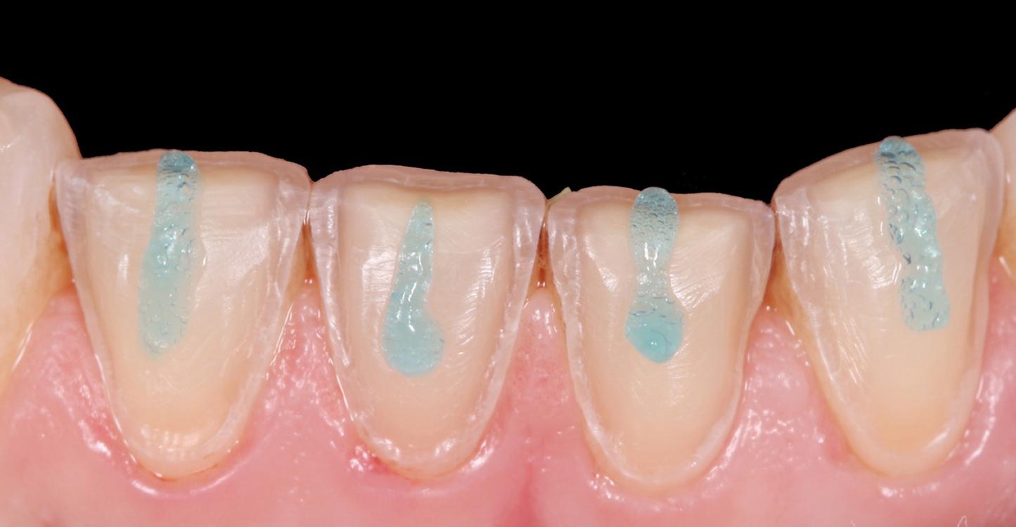 Curso de estética y prótesis dental