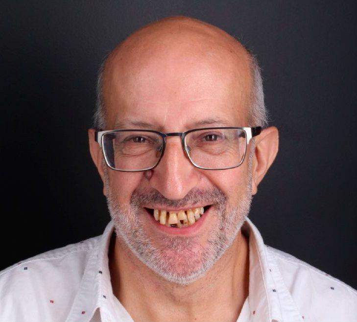 Antes del tratamiento de implantes dentales inmediatos