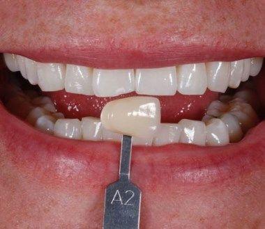 Después del tratamiento de blanqueamiento dental