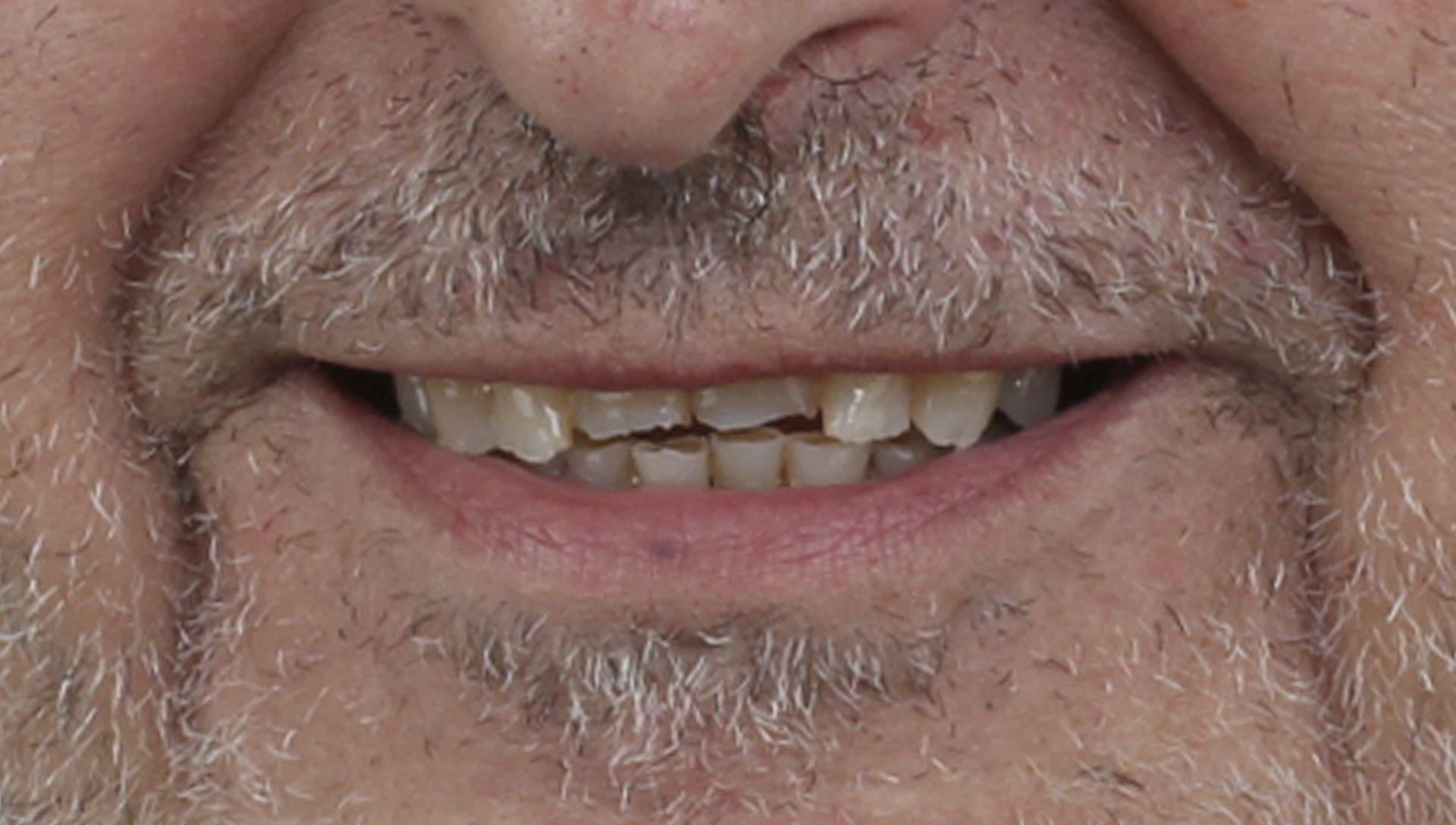 Antes del tratamiento de implantes dentales