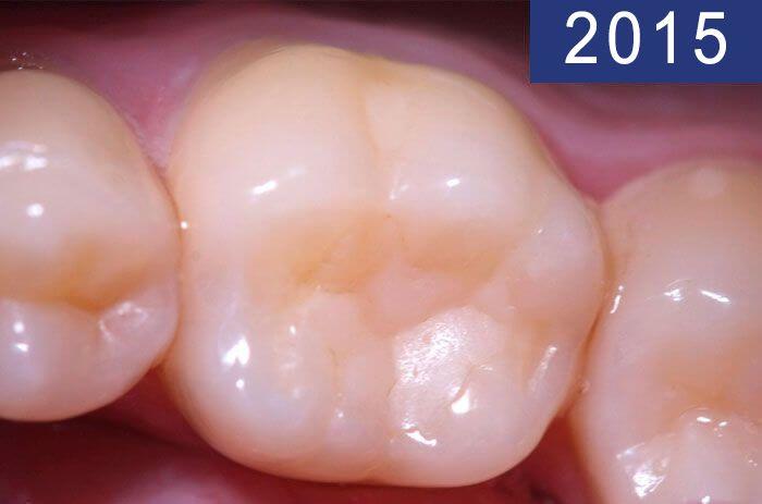 Empaste dental 18 años más tarde, realizado en el año 1997 en Clínica Dental Padrós en un tratamiento de caries dental