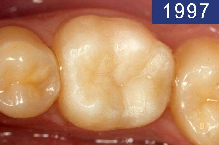 Empaste dental realizado en el año 1997 en Clínica Dental Padrós en un tratamiento de caries dental