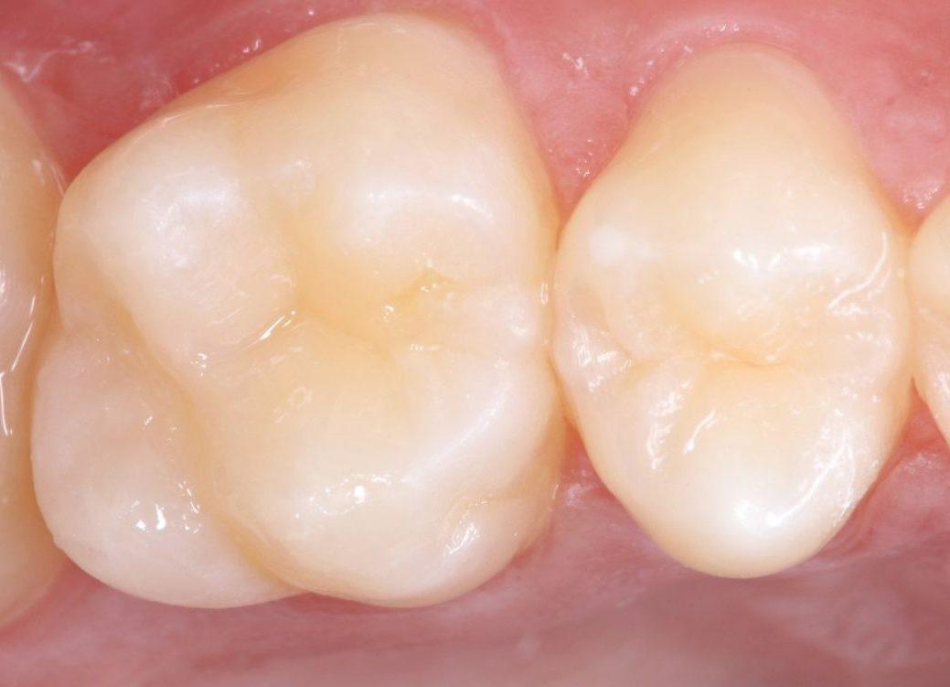 Después del reemplazo del empaste dental defectuoso por uno nuevo estratificado de larga duración. La reconstrucción resulta casi imperceptible.