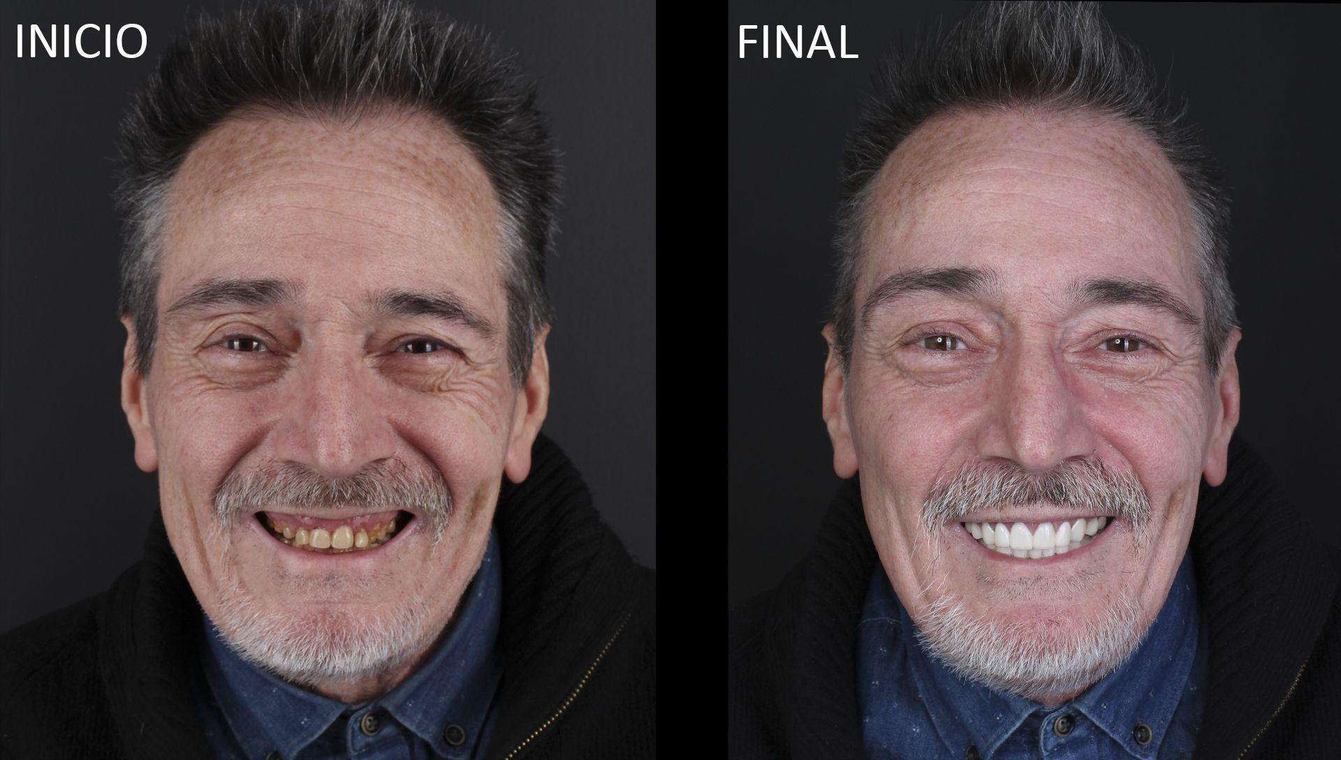 Joaquín antes y después del tratamiento de estética dental