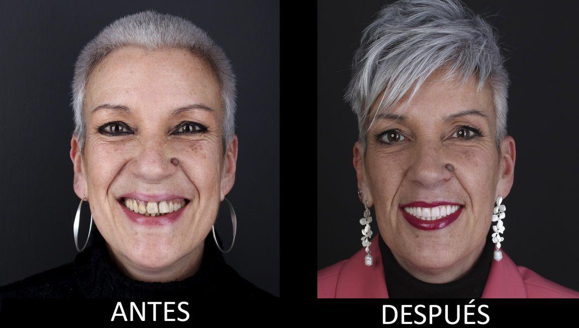 Antes y después del tratamiento de implantes dentales