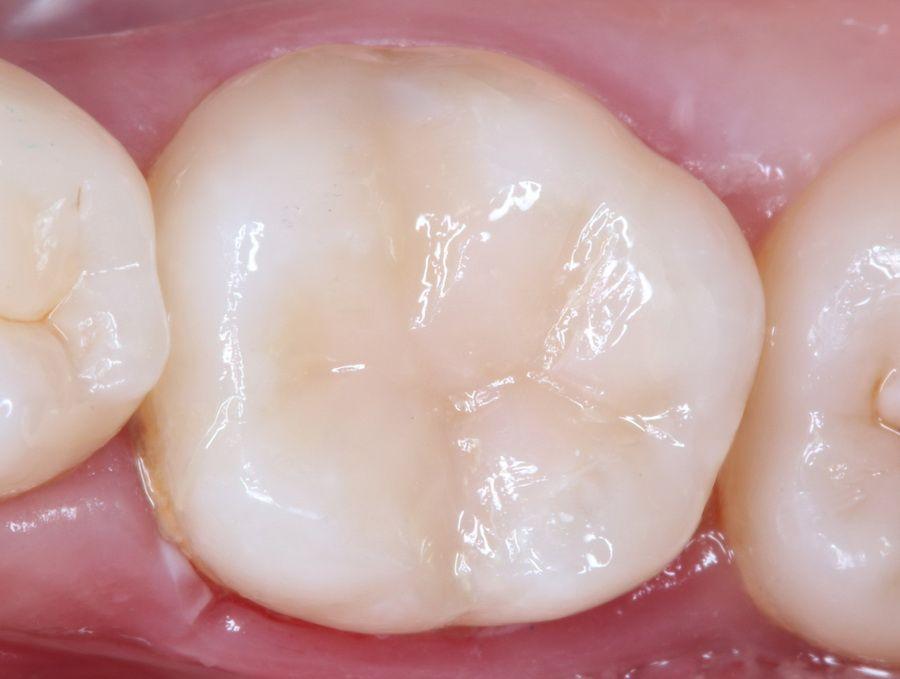 El Carisolv permite disolver de forma muy controlada y conservadora el tejido dental con caries, respetando los tejidos dentales sanos