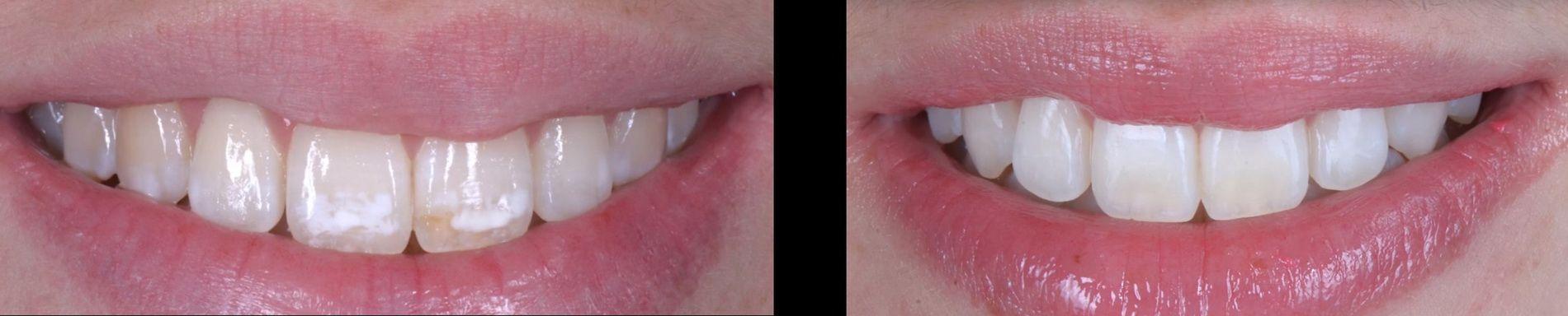 Los sistemas de microerosión-infiltración como Icon® o Opalustre® permiten eliminar o disimular mucho el efecto antiestético de estas manchas sin necesidad de utilizar turbinas ni materiales de recubrimiento, ni carillas. Clínica dental Padrós, dentista en Barcelona