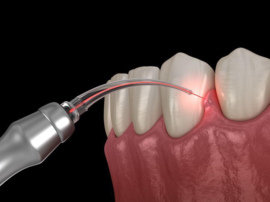 El láser dental Kavo está diseñado para tratar tejidos blandos y duros. Tiene muchas aplicaciones en odontología