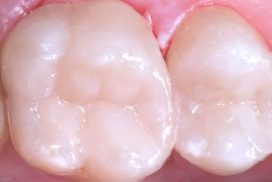 Tratamiento de eliminación de amalgamas, antiguos empastes metálicos en clínica dental Padrós. Tu dentista en Barcelona