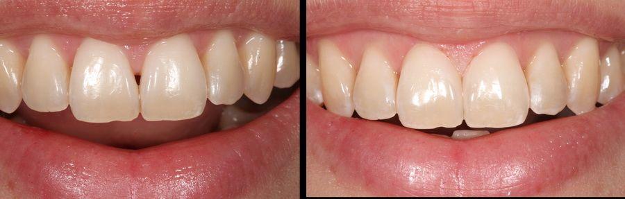 Tratamiento de estética de las encías retraidas. Clínica dental Padrós, dentista en Barcelona