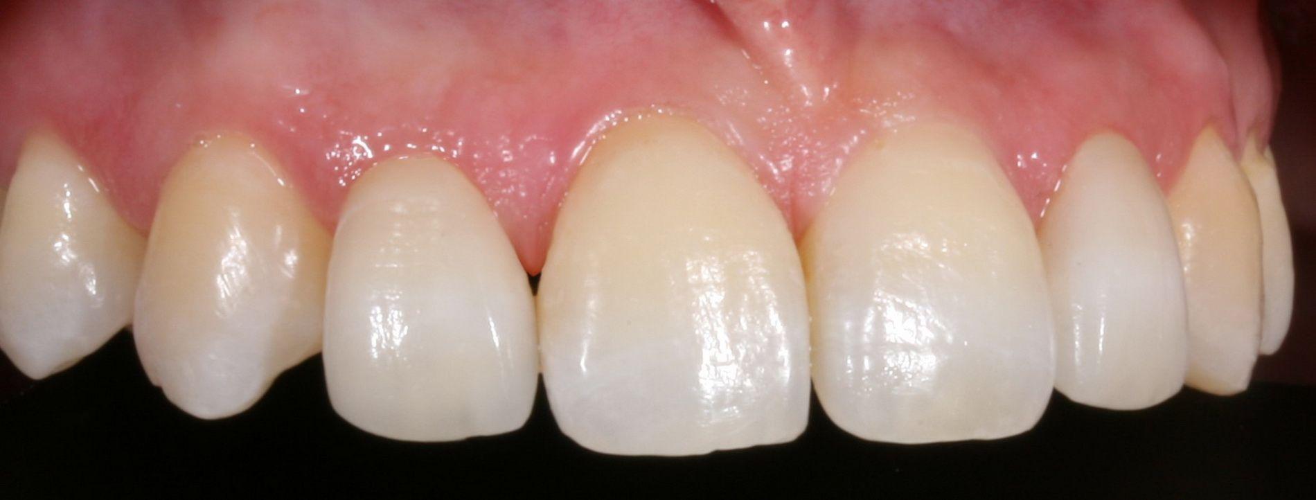 El sistema Cerec 3D de CAD-CAM dental permite confeccionar restauraciones dentales con una precisión de ajuste de 30 micras.