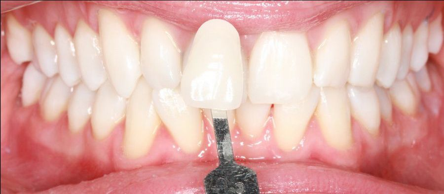 Tratamiento de estética blanqueamiento dental. Clínica dental Padrós, dentista en Barcelona