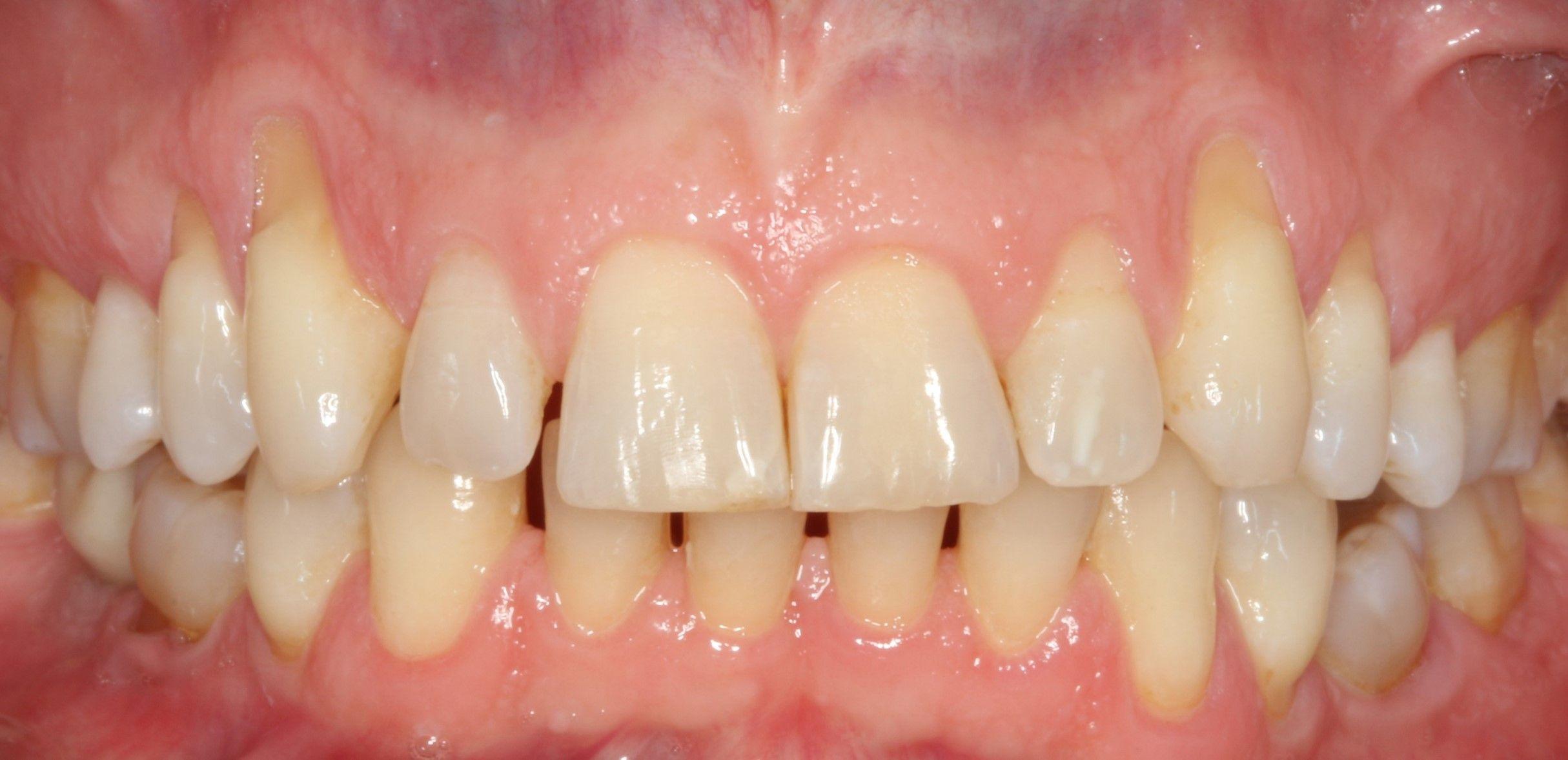 Antes del tratamiento de encías retraídas mediante la técnica Pinhole