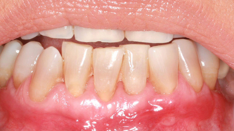 Después del tratamiento de encías retraídas mediante la técnica Pinhole