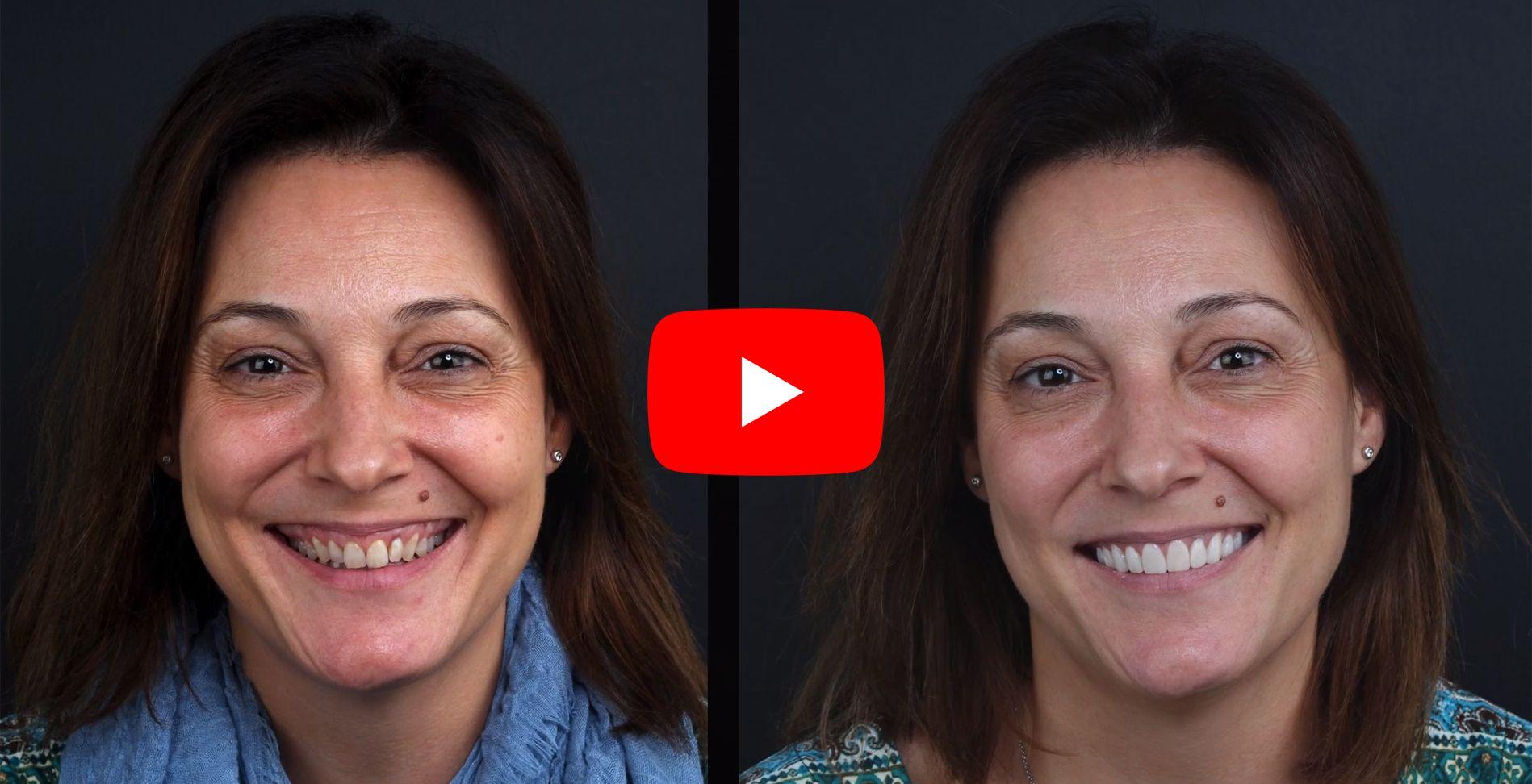 Video testimonios de los pacientes tratados en clínica Padrós de carillas dentales