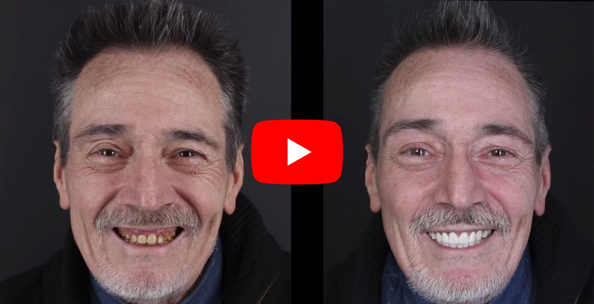 Video testimonios de los pacientes tratados en clínica Padrós de estética dental