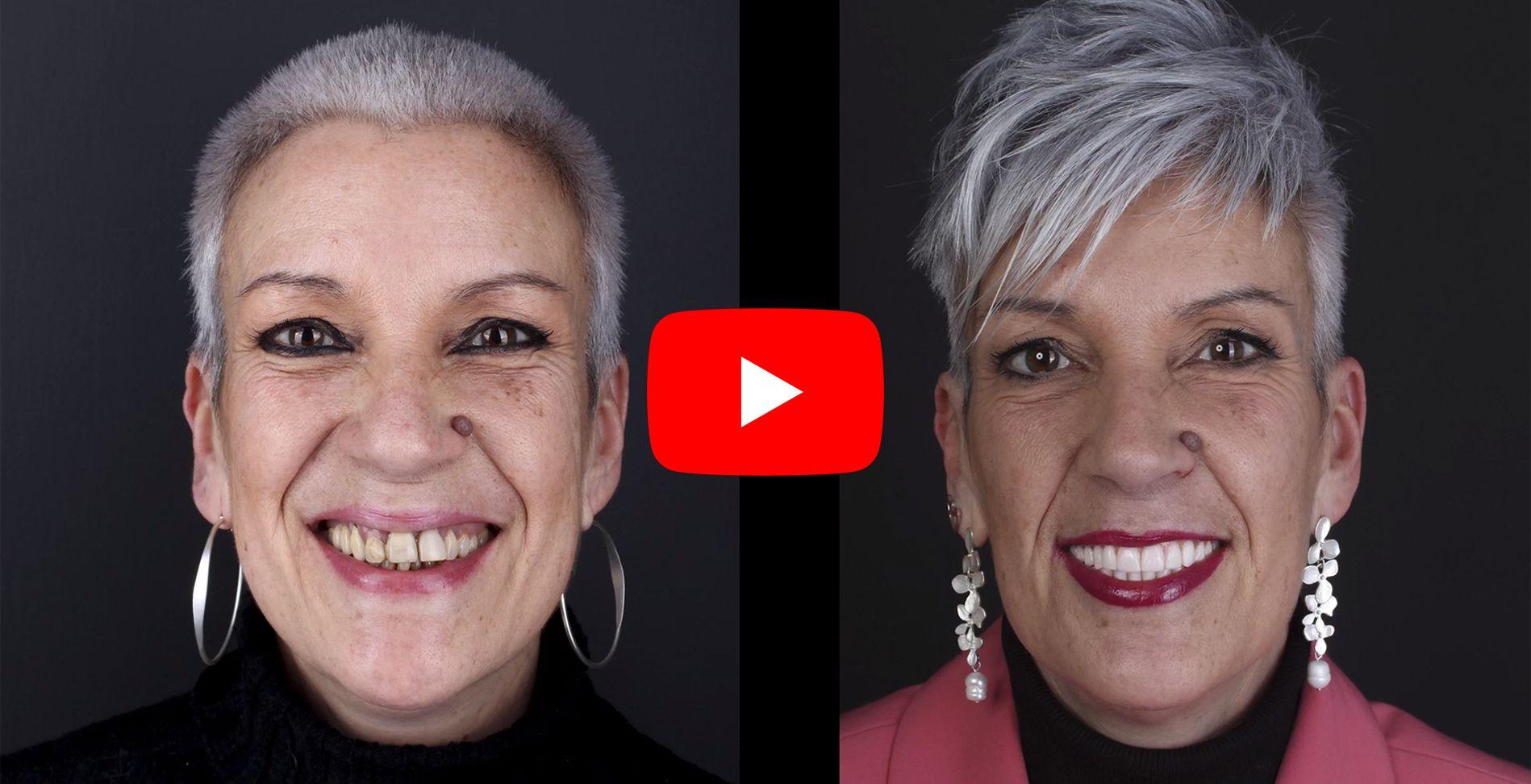 Video testimonios de los pacientes tratados en clínica Padrós de implantes dentales