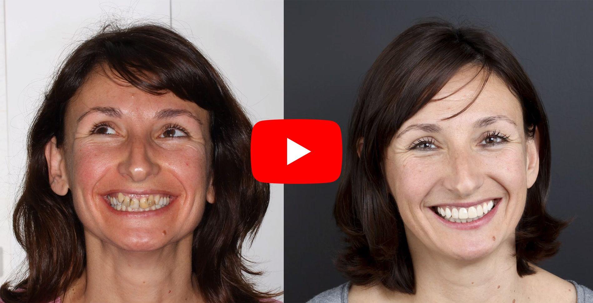 Video testimonios de los pacientes tratados en clínica Padrós de ortodoncia