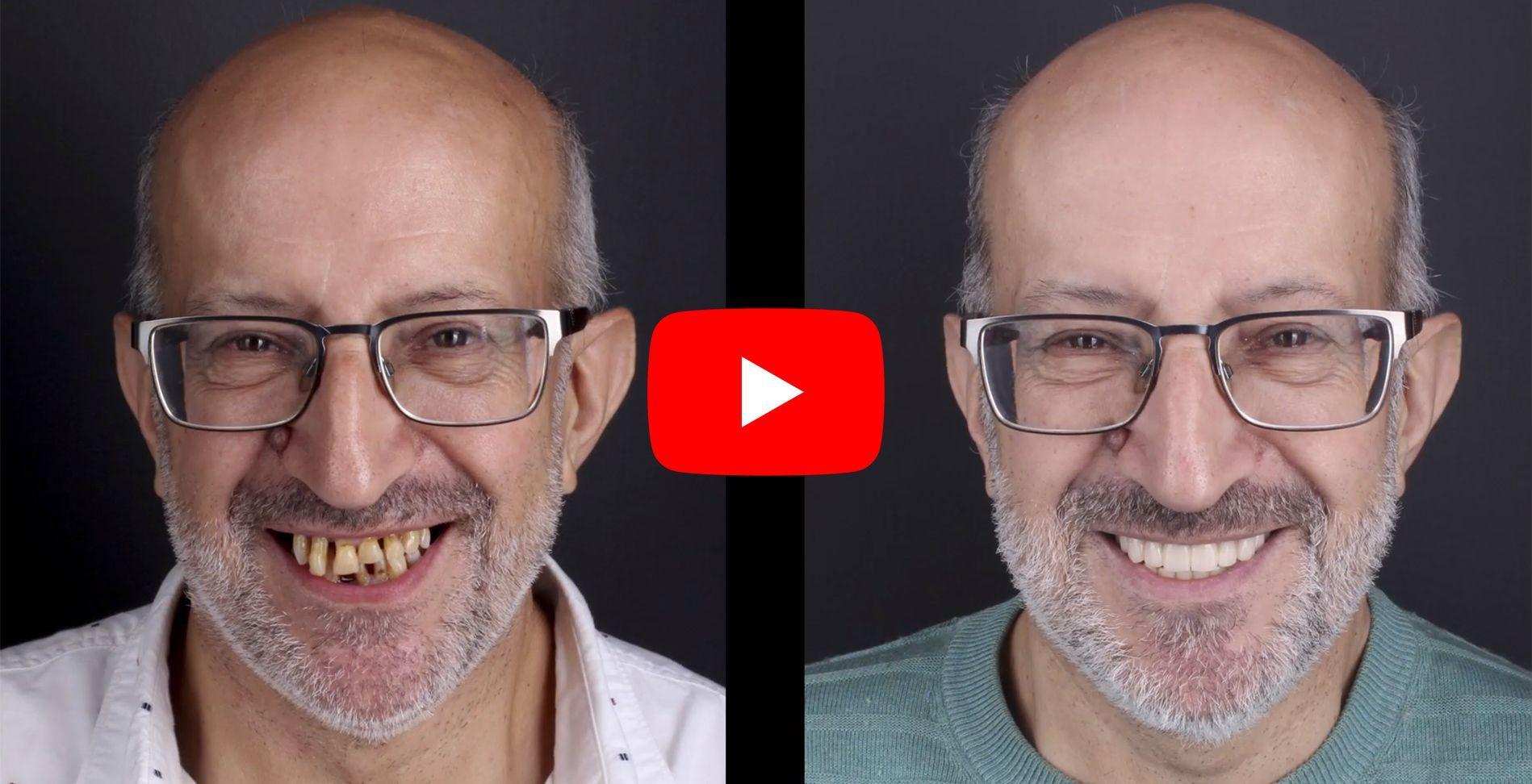 Video testimonios de los pacientes tratados en clínica Padrós de prótesis dentales