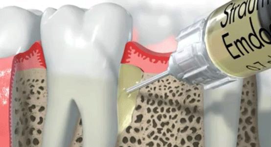 Emdogain hace posible y predecible la regeneración de hueso perdido por periodontitis, ayudando a conservar los dientes