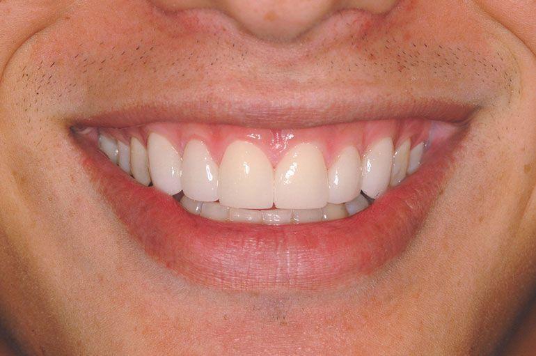 Después del tratamiento de carillas de cerámica o porcelana utilizando la tecnología Lumineers