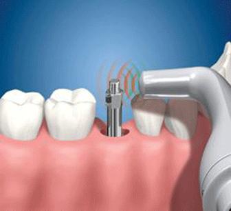 El sistema Ostell permite controlar la estabilidad y la evolución de los implantes dentales