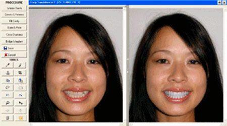 Estética dental. La simulación por ordenador de un cambio en su sonrisa permite ver cómo mejora el aspecto general de la cara