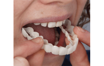 Snap on smile es un tratamiento inocuo, no invasivo de estética dental. Consiste en unas férulas estéticas de quita y pon