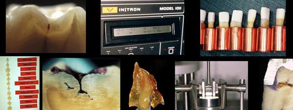 Estas son una muestra de algunas de las imágenes de diferentes estudios realizados por la clínica dental Padrós y publicados en los medios científicos nacionales y extranjeros