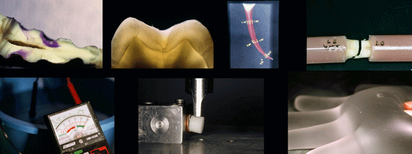 Estas son una muestra de algunas de las imágenes de diferentes estudios realizados por la clínica dental Padrós y publicados en los medios científicos nacionales y extranjeras