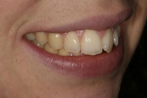 Analizando muestras de casos prácticos del tratamiento de ortodoncia rápida en Barcelona Inman Aligner. En la imagen se observa la posición de los dientes en uno de los pacientes tratados en nuestra clínica dental antes de haberse sometido al tratamiento.