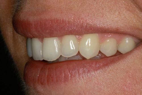 Analizando muestras de casos prácticos del tratamiento de ortodoncia rápida en Barcelona Inman Aligner. En la imagen se observa la posición de los dientes en uno de los pacientes tratados en nuestra clínica dental después de haberse sometido al tratamiento.