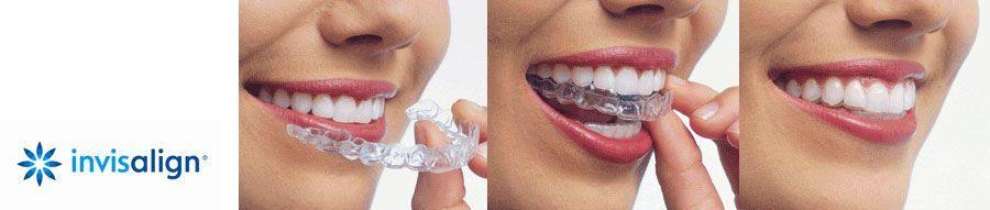 La clínica dental Padrós en Barcelona dispone del tratamiento de ortodoncia invisible invisalign, aparatos transparentes y removibles