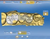 Imágenes de un caso real en clínica dental Padrós con el sistema CEREC CAD-CAM. Con el uso del software de diseño podemos mejorar el diseño y creación de restauraciones dentales, especialmente prótesis dentales incluyendo coronas, carillas, puentes, implantes y aparatos de ortodoncia