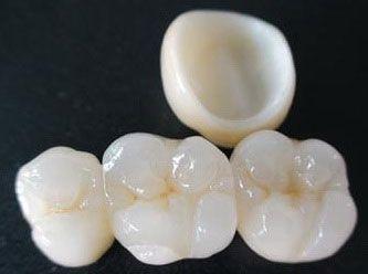 Con el uso del software de diseño CAD-CAM podemos mejorar el diseño y creación de restauraciones dentales, especialmente prótesis dentales incluyendo coronas, carillas, puentes, implantes y aparatos de ortodoncia