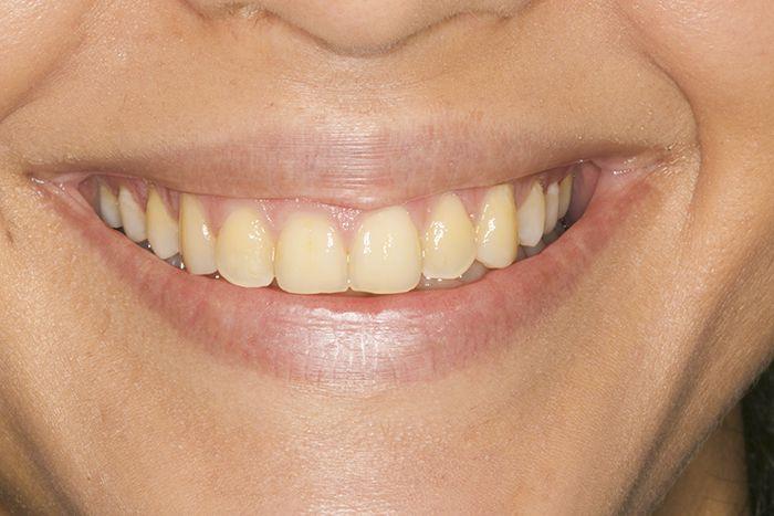 Antes del tratamiento de estética blanqueamiento dental. Clínica dental Padrós, dentista en Barcelona