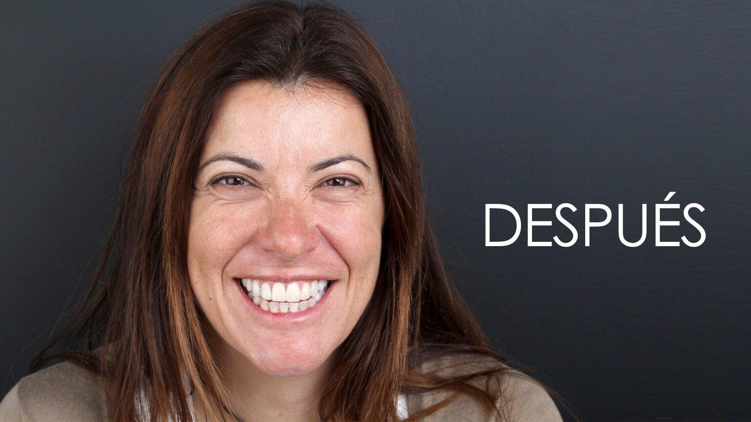 Después del estudio de estética dental y el tratamiento de ortodoncia